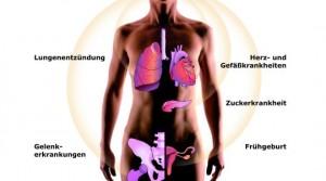 Eine Parodontitis beeinflusst Diabetes und kann sie verschlimmern. Da die Krankheit chronisch ist und nur kontrolliert aber nicht geheilt werden kann, gilt die erhöhte Aufmerksamkeit der Diabetiker für ihre Zahngesundheit ein Leben lang. Neueste Untersuchungen aus Finnland, USA und Deutschland erhärten den Verdacht, dass eine Zahnfleischentzündung (Parodontitis) ein verdoppeltes Herzinfarktrisiko nach sich zieht, das Schlaganfallrisiko verdreifacht und das Risiko einer Frühgeburt sich verachtfacht. +++ Die Verwendung dieses Bildes ist nur für redaktionelle Zwecke und ausschließlich in Bezug auf das Thema Zahnmedizin gestattet. Die Bearbeitung des Bildes ist nicht erlaubt, mit Ausnahme der Verkleinerung oder Vergrößerung sowie der technischen Aufbereitung zum Zweck der optimalen Vervielfältigung. Die Weitergabe dieses Bildes an Dritte und insbesondere der honorarpflichtige Vertrieb/die Speicherung in Bilddatenbanken i